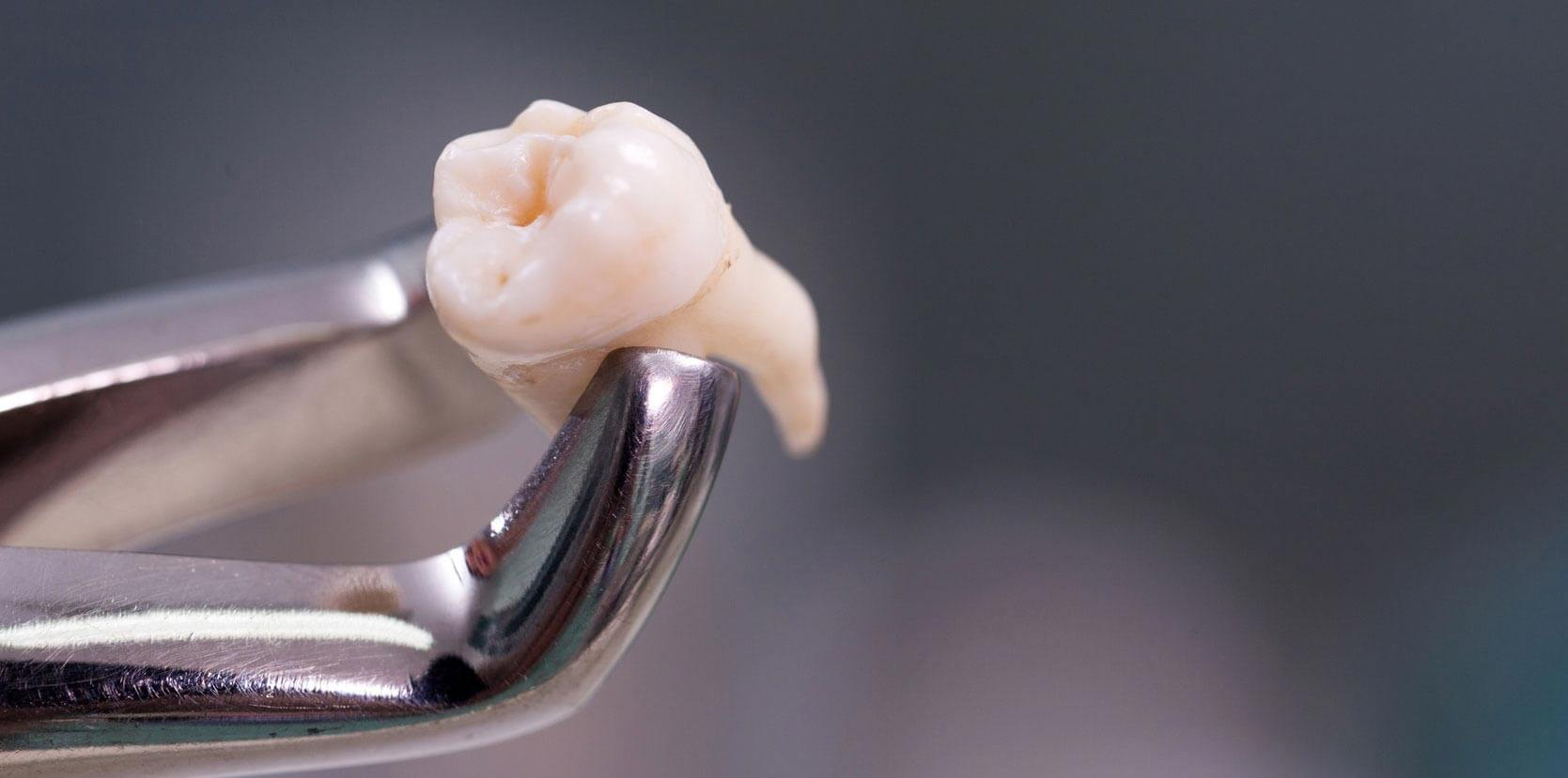 Tooth Extraction – Important facts you should know